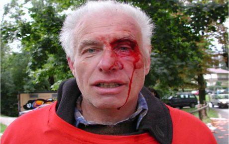 15. 9. 2001: Zirkus Belly-Wien verletzt Tierschützer_innen schwer!